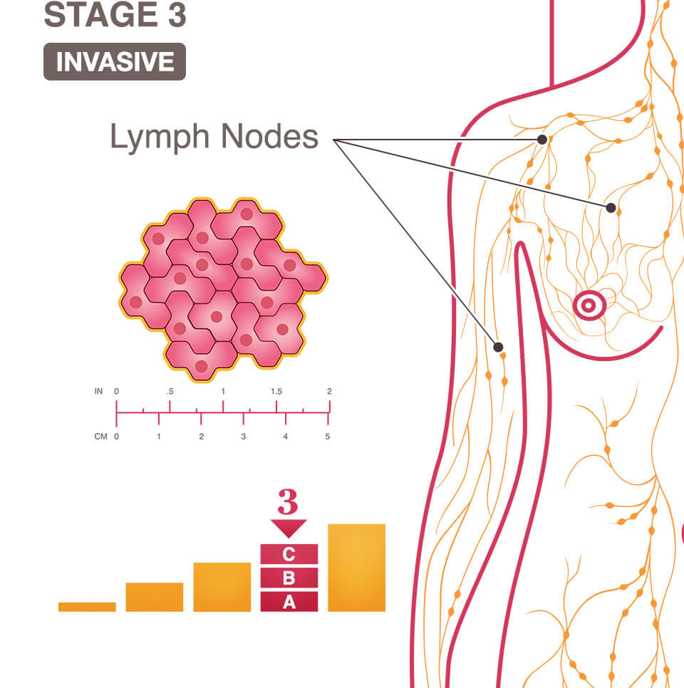 Stage 3 Iii A B And C National Breast Cancer Foundation