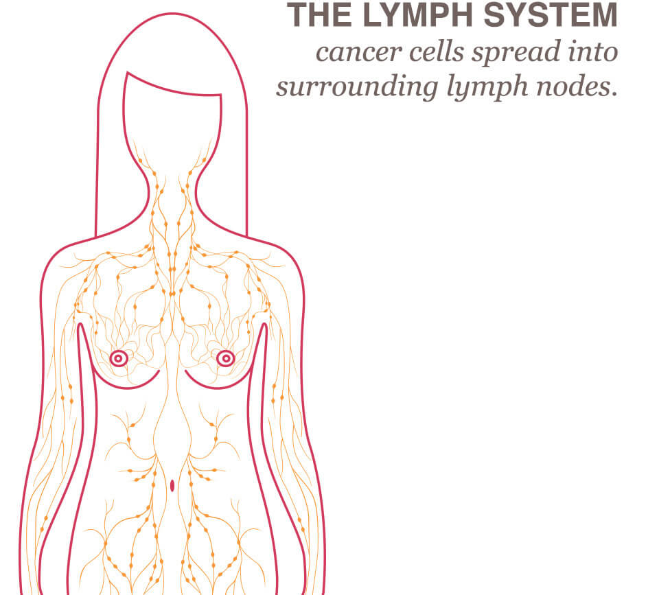 Lymph Node Removal Lymphedema National Breast Cancer Foundation
