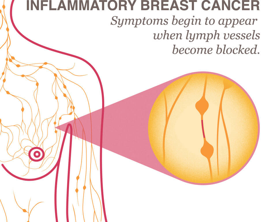 Inflammatory Breast Cancer Ibc National Breast Cancer Foundation